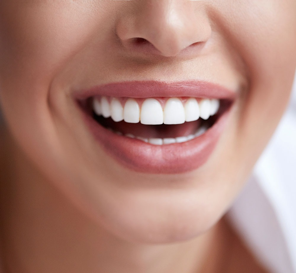white teeth veneers