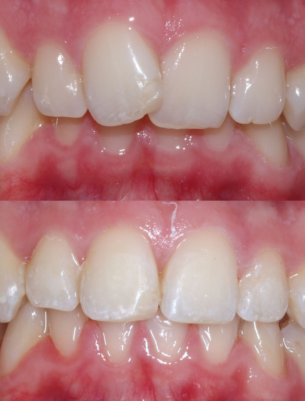 lingual braces before after