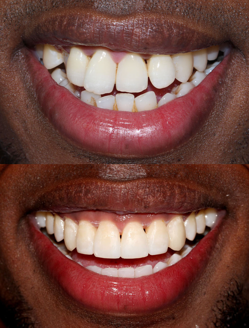 invisalign clear aligners before and after