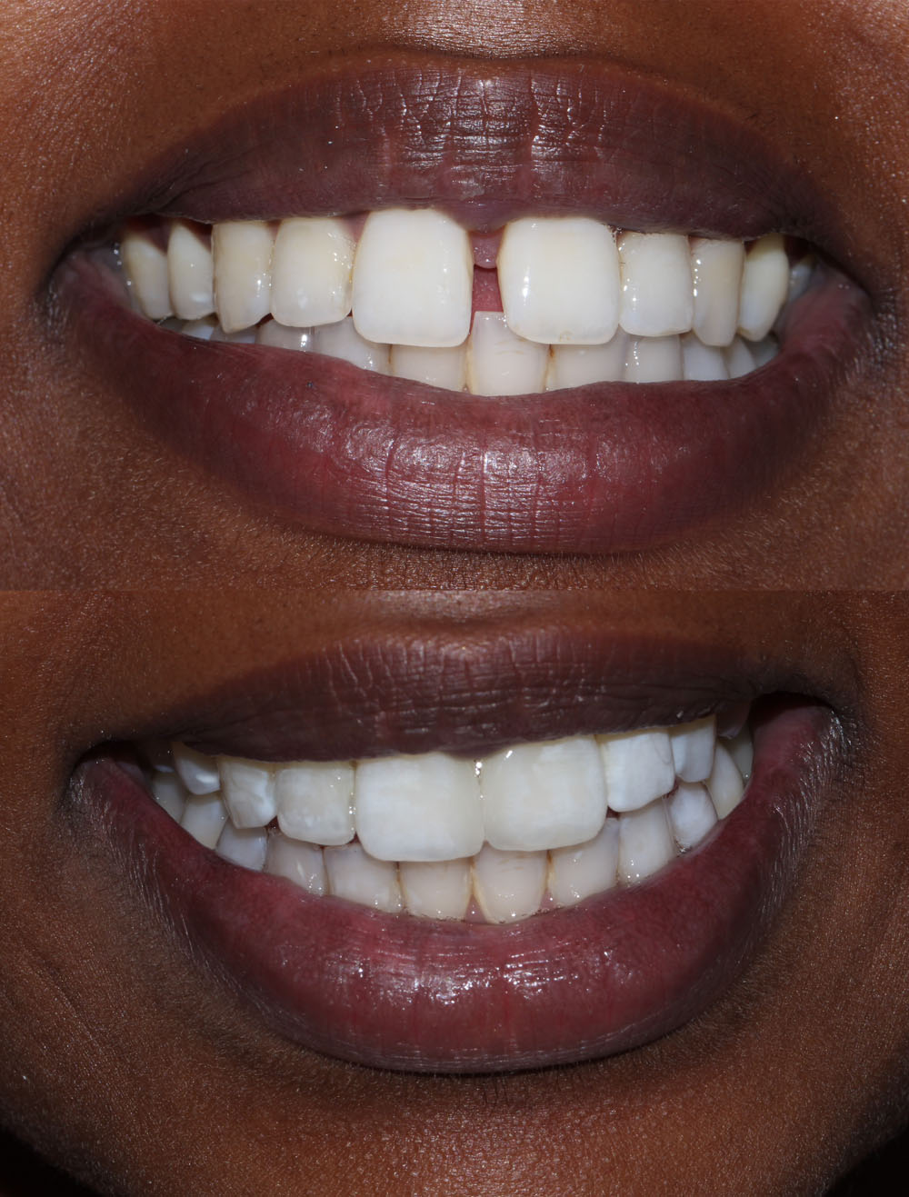 composite bonding before after